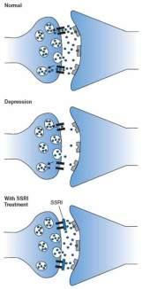 Imagen actuación antidepresivos